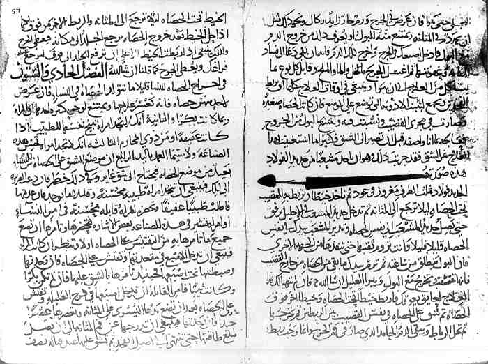 A manuscript page of the 30th section of Al-Tasrif book of Al-Zahrawi (the first ever illustrated operative surgical book) showing the instrument and technique he devised to crush an impacted urethral stone, avoiding the need to cut on it.