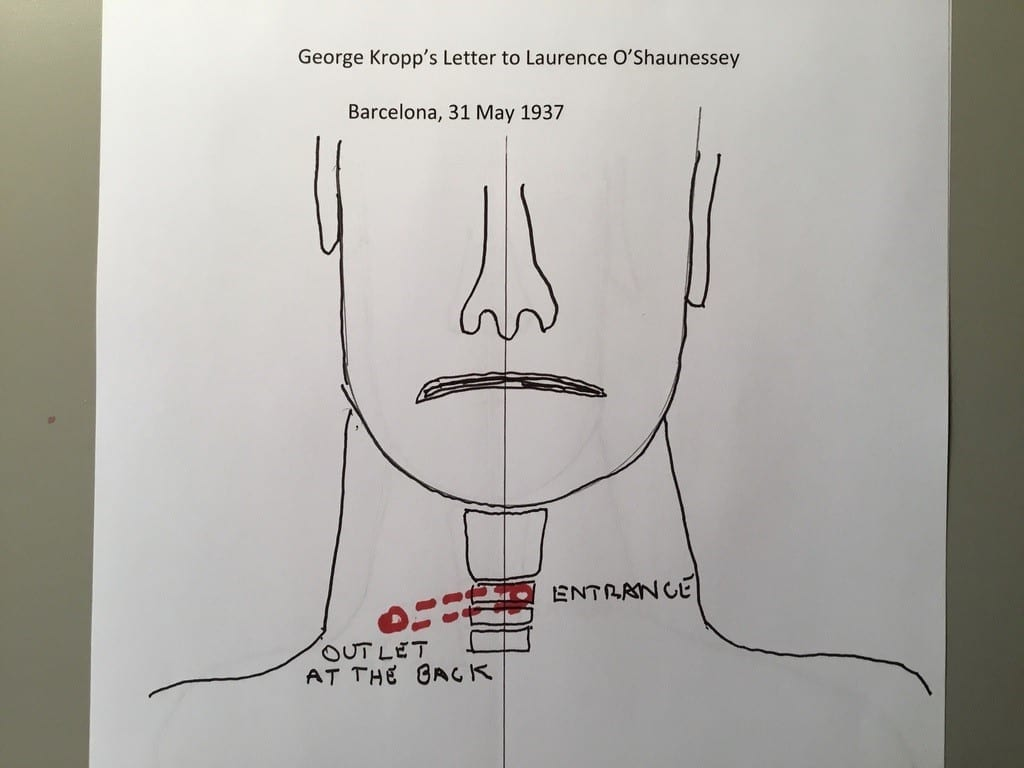 Illustration of George Orwell's neck wound